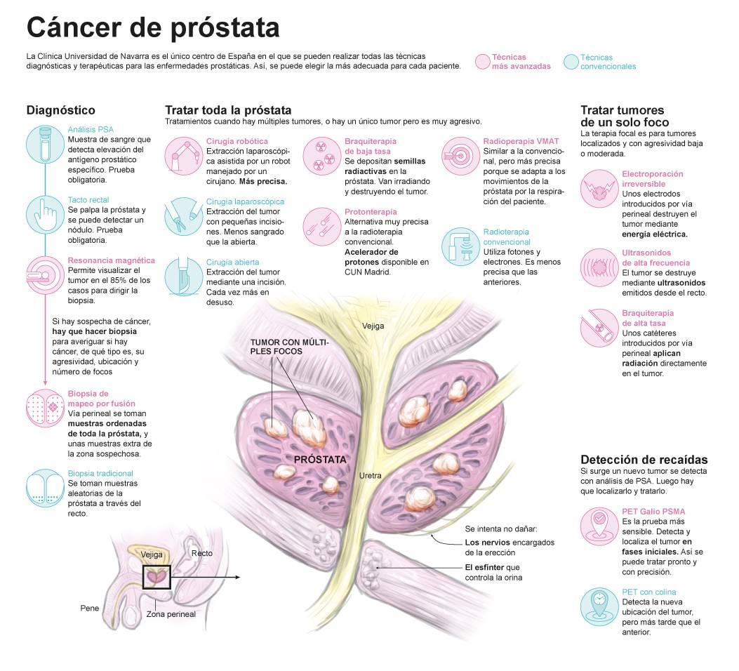 Cancerul de prostata: Simptome, Cauze, Tratament - docspoint.ro