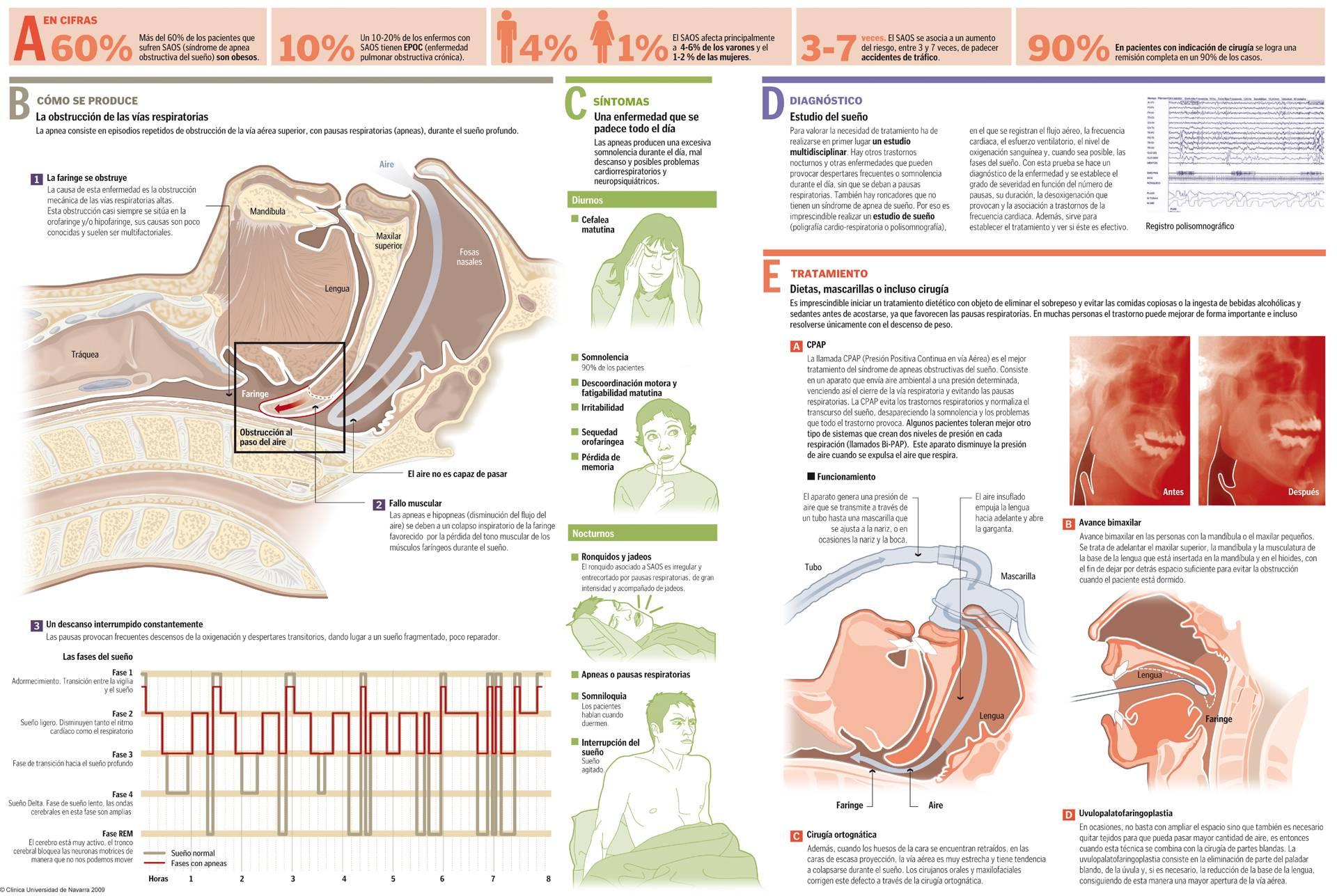 Cómo detener la micción frecuente durante el sueño