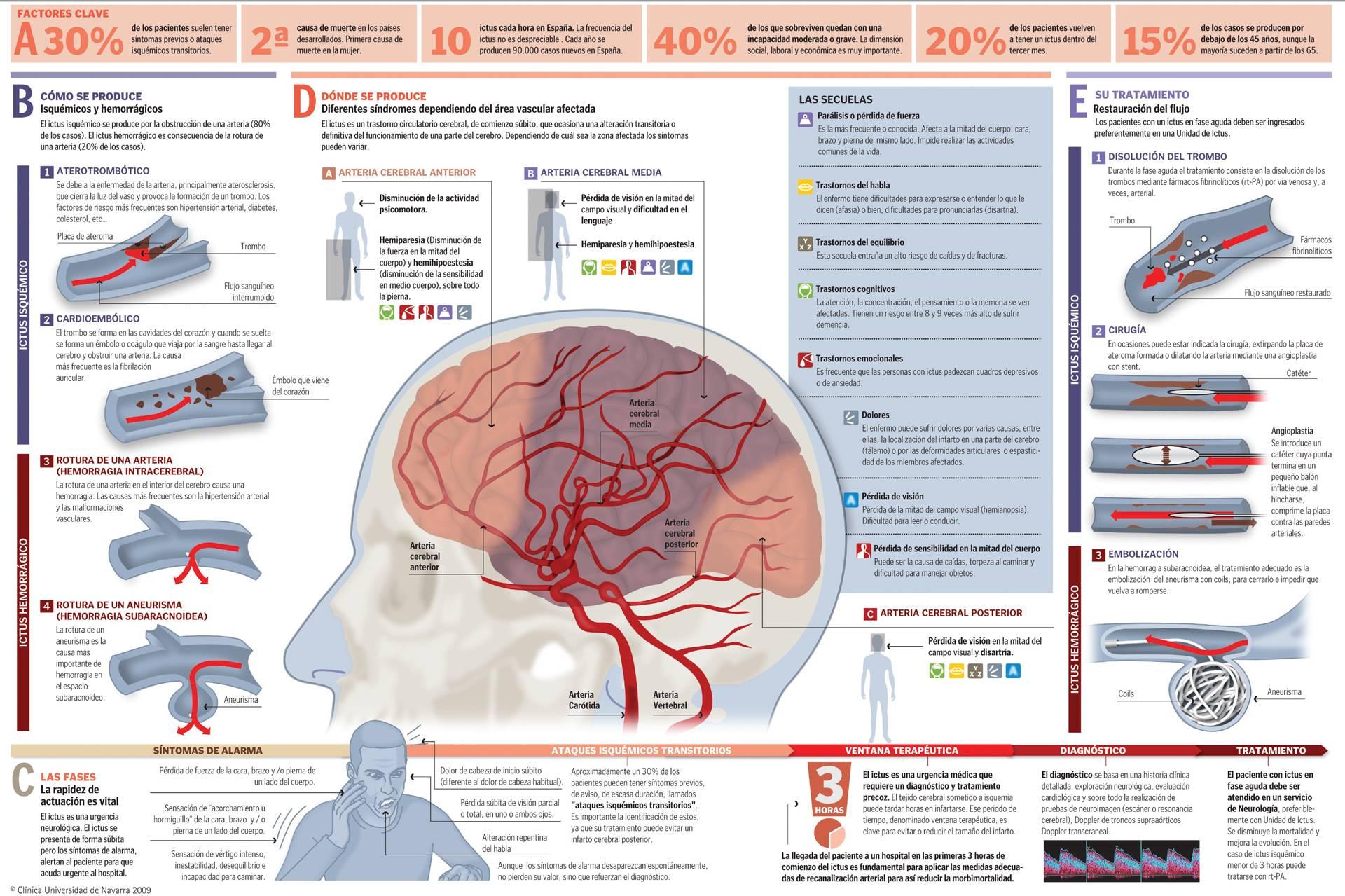 accidentes vasculares sintomas de diabetes