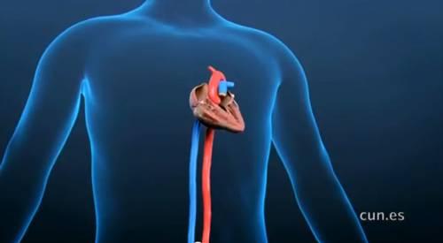 Crioablación, tratamiento de las arritmias cardiacas con