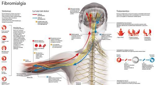 Signos y sintomas de fibromialgia