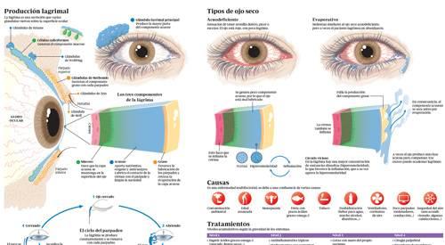 aaf3aee2ef Imagen miniatura del infográfico sobre el síndrome del ojo seco. Clínica  Universidad de Navarra