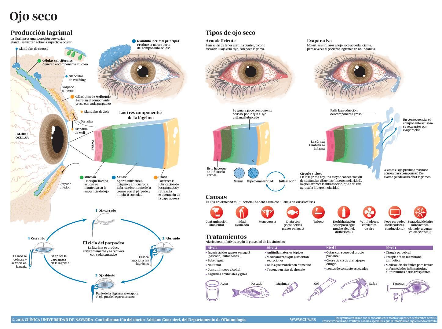Ojo seco: causas, síntomas y tratamiento. Clínica Universidad de Navarra