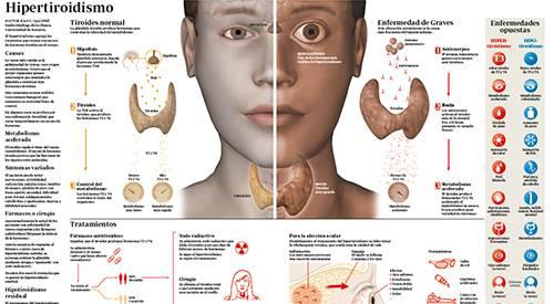 que es hipertiroidismo y sintomas