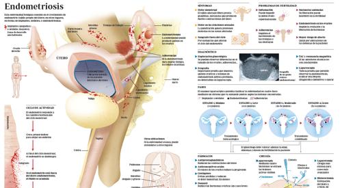 endometriosis sintomas y causas
