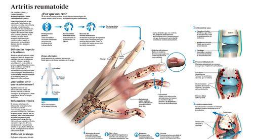 actúa linear unit solfa syllable artritis