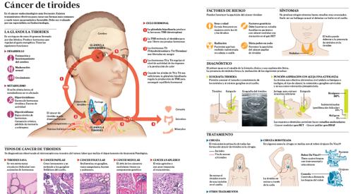 Cáncer de Tiroides: síntomas, signos, causas, tipos