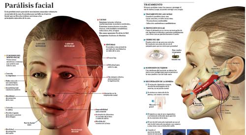 Paralisis facial aspectos psicologicos