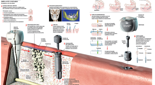 Image preview del infográfico sobre implantes dentales