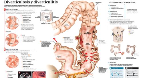 Resultado de imagen de diverticulitis sintomas gases