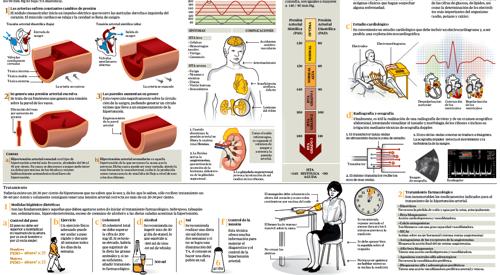 Los ejercicios a la osteocondrosis de la columna vertebral en fitbole
